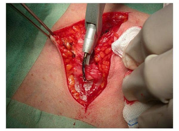 Video Endoscopic Thyroidectomy